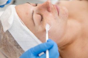 Nanašanje kisline na obraz